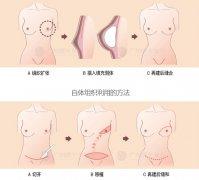 乳房再造术的手术流程是怎样的