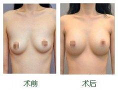 硅胶假体隆胸手术失败了怎么办