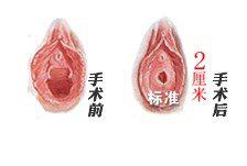 荆州处女膜修复手术安全吗