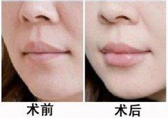 注射丰唇的材料有哪些