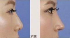 注射隆鼻和假体隆鼻的区别?