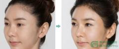 女性毛发移植是什么样的呢?