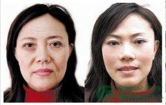 荆州关注面部自体活细胞填充