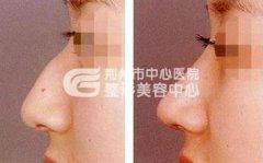隆鼻后会留下疤痕吗