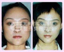 <b>脸部吸脂手术前后的注意事项有哪些呢?</b>