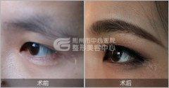 <b>眉毛种植的适应症有哪些?</b>
