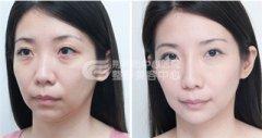 玻尿酸祛法令纹 完美肌肤更靓丽