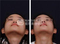 鼻头缩小术你知道吗