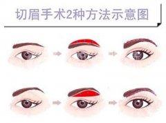 荆州切眉手术的价格是多少