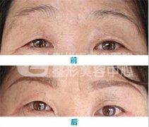 切眉术怎样改善眉形?