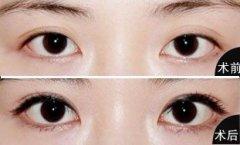 做双眼皮的各种方法详解