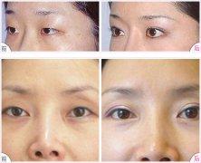 隆眉弓术前术后的注意事项有哪些?