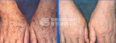 <b>激光治疗老年斑的效果如何?</b>