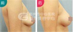 荆州治疗乳房下垂要多少钱呢?