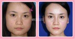 <b>磨骨瘦脸后应如何护理呢?</b>