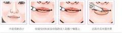 <b>玻尿酸丰唇的效果可以保持多久</b>