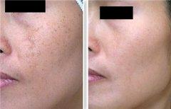 <b>激光祛晒斑对皮肤有伤害吗?</b>