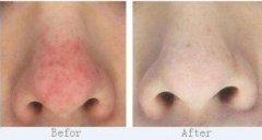 <b>治疗酒糟鼻的方法有哪些呢?</b>