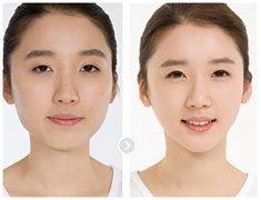 注射瘦脸针对年龄有限制吗?