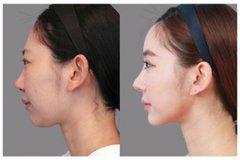 玻尿酸隆鼻能维持多久?