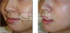 注射玻尿酸进行唇珠再造有没有副作用