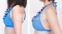 乳房再造效果如何