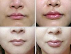非手术丰唇的方法有哪些