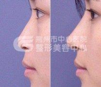 <b>假体隆鼻的效果怎么样</b>