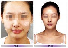 面部吸脂后皮肤会松弛吗