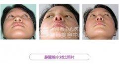 荆州鼻翼缩小整形手术