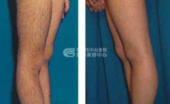 激光脱腿毛具有哪些优势
