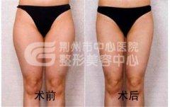 荆州大腿吸脂的恢复时间