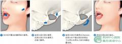 颧骨整形手术是如何进行的?