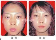 荆州做厚唇改薄手术需要多少钱