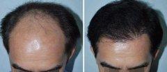 <b>植发后,五个养护头发的小妙招!</b>