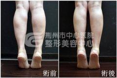 <b>小腿吸脂后可能会出现哪些情况?</b>