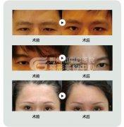 提眉术后的恢复期是多长呢?
