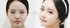 哪些人适合面部吸脂瘦脸?