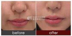 <b>荆州玻尿酸丰唇的价格是多少</b>