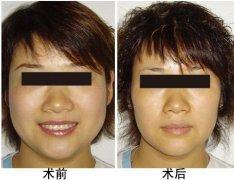 <b>瘦脸整形哪一种适合你呢?</b>