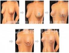 <b>乳房下垂矫正手术的安全性如何?</b>