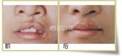 <b>如何治疗唇裂,是否遗传?</b>