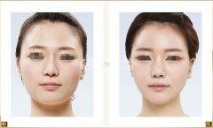 <b>面部吸脂会不会对皮肤产生影响?</b>