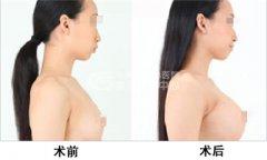 自体脂肪隆胸效果可维持多久?