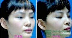 <b>鼻小柱延长术安全性如何</b>