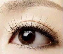 <b>开外眼角价格的影响因素有哪些?开外眼角术后有什么护理</b>