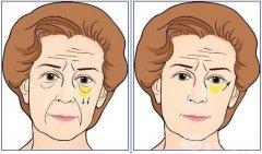 <b>荆州中心医院做祛眼袋手术效果能维持多久</b>