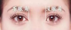 <b>韩式无痕开眼角有什么原则?哪些人适合做开眼角手术</b>