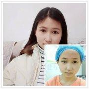 【整形日记】荆州医院做双眼皮100天恢复过程图