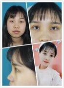 <b>凤凰涅槃,浴火重生——见证荆州医院真人双眼皮手术三个月变化</b>